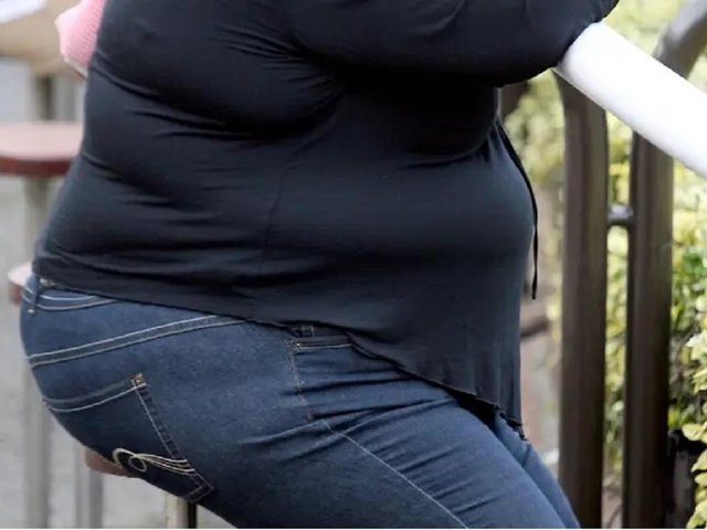 Obesity admissions to hospital are higher in Luton that the rest of the East England region
